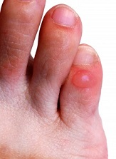 how to find blisters under the skin